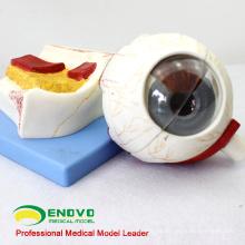 EYE05 (12529) Anatomia Médica Modelo de Globo Ocular, 5 vezes em tamanho real, 7 partes, Modelos Olho-Nariz-Garganta