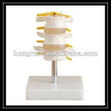 Modelo de vértebra lombar ISO, modelo de articulação humana
