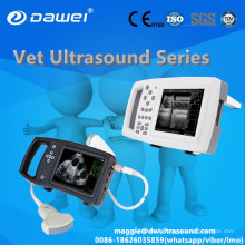 Appareil d'échographie numérique de poche DW-600 pour la gynécologie