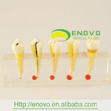 EN-M5 alta qualityresin dental polpa doença clínica modelo para uso de comunicação médico-paciente