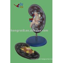 Modelo de anatomia do rim, modelo de rim (2 pedaços)