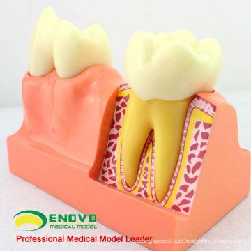 TOOTH21 (12599) 4 quatro vezes ampliam o modelo anatômico do Demo da estrutura dental do dente