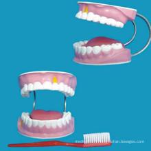 Modèle humain 28 modèles de dents pour soins dentaires Modèle d'enseignement médical
