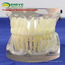 VENDRE 12572 FE dents dentaires articulaires humaines pour l'étude des dents