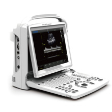 Ultrasonido, ultrasonido escáner negro blanco Doppler portátil portátil (SC-ECO3 experto)