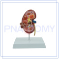 PNT-0739 high quality plastic anatomical kidney model From China supplier