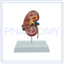 PNT-0739 new design Plastic Kidney with Adrenal Gland Best price high quality