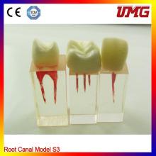 Modelo dental del canal de la raíz para el entrenamiento