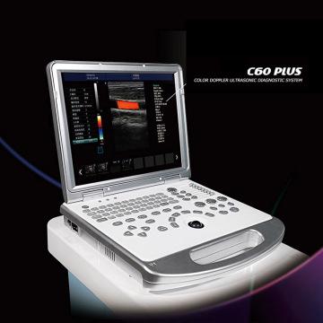 Máquina de escáner de ultrasonido doppler color 4d