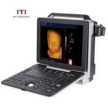 Clear Imaging Digital 4D Color Doppler Echocardiographie Cardiac USG Portable Ultrasound Machine