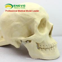 TF09 (12320) Modelo de Prática de Cirurgia de Reparo de Crânio para Educação Médica