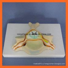 Пятый шейный позвонок с моделью спинного мозга и спинного нерва