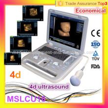 Échographie populaire: MSLCU18i Dernier scanneur à ultrasons portable 4D à ultrasons / scanner à ultrasons