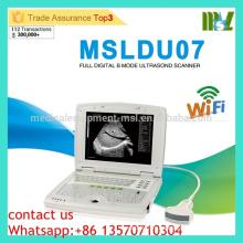 MSLDU07 Prix à la machine à ultrasons par machine à ultrasons Latop économique et à coût élevé