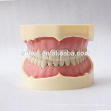 28пк зубы черные анатомические модели FDental для Преподавательства школы 13006, замена зубов Сиут для Frasaco челюсти