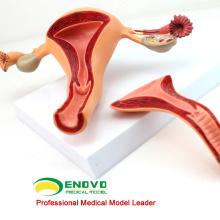 VENDRE 12442 Structure utérine Modèle anatomique Système reproductif d'anatomie