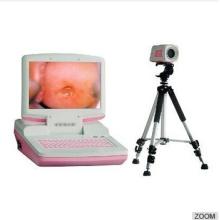 3303 portable Colposcope électronique numérique