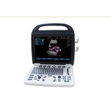 Sistema de ultrassom Doppler colorido para hostipal