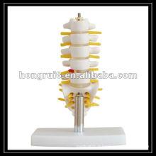 Vertebra Lombar de tamanho natural com Sacrum e Coccyx e disco de hernia, Modelo de articulação humana HR-119A