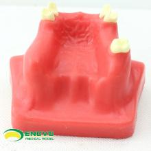VENDRE le modèle dentaire de pratique d'ascenseur de sinus 12615 utilisé pour pratiquer
