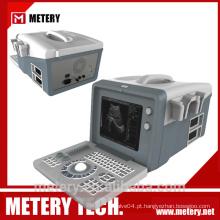 Máquina de ultra-som digital portátil MT128V da METERY TECH.