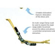 Sistema fijador de codo