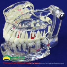 VENDER 12567 dental dental em tamanho natural com dente de implante