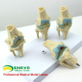 JOINT12 (12359) Medical Anatomy Model 4-Stage Osteoarthritis Knee Joint Models