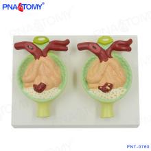 PNT-0760 modelo anatômico de rim de proteína na urina