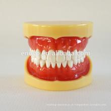 China Medical modelo anatômico dura gomas 28 dentes padrão maxilar dental modelo 13013