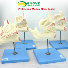 SELL 12604 Demo Development Model of Child to Adult Teeth