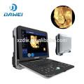 DW-C300 High end Portable 4D doppler ultrasound machine