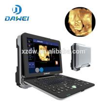 Máquina portátil do ultra-som doppler da extremidade alta DW-C300 4D