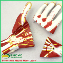 MUSCLE09 (12032) Anatomia Seccional de Mãos de Nervos e Vasos Sanguíneos Modelo, Modelo de Anatomia Humana da Mão 12032