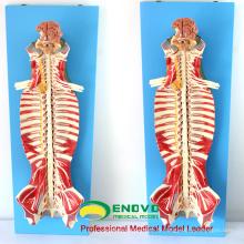 MUSCLE17 (12311) Modèle d'anatomie de canal rachidien d'utilisation médicale d'éducation 12311