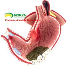 STOMACH04 (12537) modèle de maladie gastrique de mannequin humain d'estomac pour l'étude de Science médicale