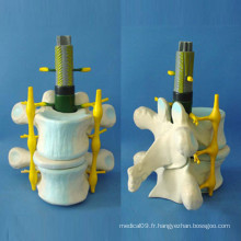 Enseignement médical Modèle humain à squelette spinale humain (R140104)