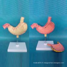 Modèle de démonstration médicale de l'ulcère gastrique de l'estomac humain (R100202)