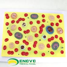 HEART18(12496) человека образовательная модель клетки крови , медицинская Наука модель клетки крови