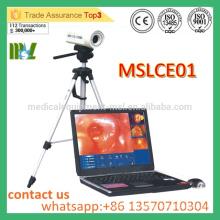 MSLCE01 Colposcope portable portatif rentable Colposcope vidéo de haute qualité pour le vagin
