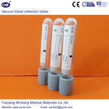 Вакуумные пробирки для сбора крови Глюкоза (ENK-CXG-036)
