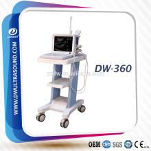 scanner portatif à vessie à ultrasons avec sonde convexe