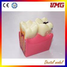 Hot Sale Dental Implants Supplies Dental Teeth Models