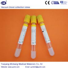 Tubos de la colección de la sangre del vacío tubo de Sst (ENK-CXG-021)