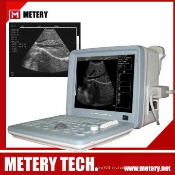 Explorador ultrasónico de ultrasonido digital