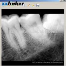 LK-C64 Oui Détecteur de rayons X dentaire Biotech Dental Digital