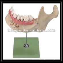 Modelo de dentes adultos amplificados ISO, mandíbula inferior de uma criança de 18 anos de idade HR / B10002