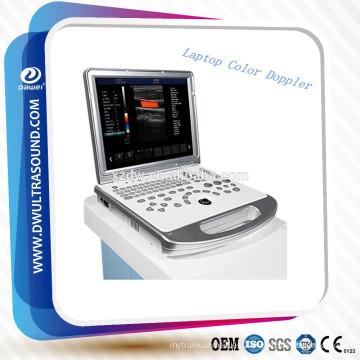 máquina de ultrasonido Doppler color portátil médica