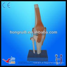 Modelo de modelo de esqueleto de joelho artificial Vivid Life Size de alta qualidade