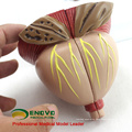 UROLOGY11(12438) Two Time Large Movable 4 Parts Male Prostate Medical Anatomical Model